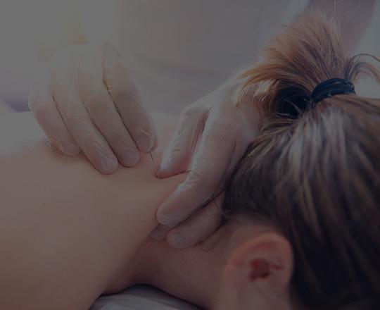 美容鍼(灸)